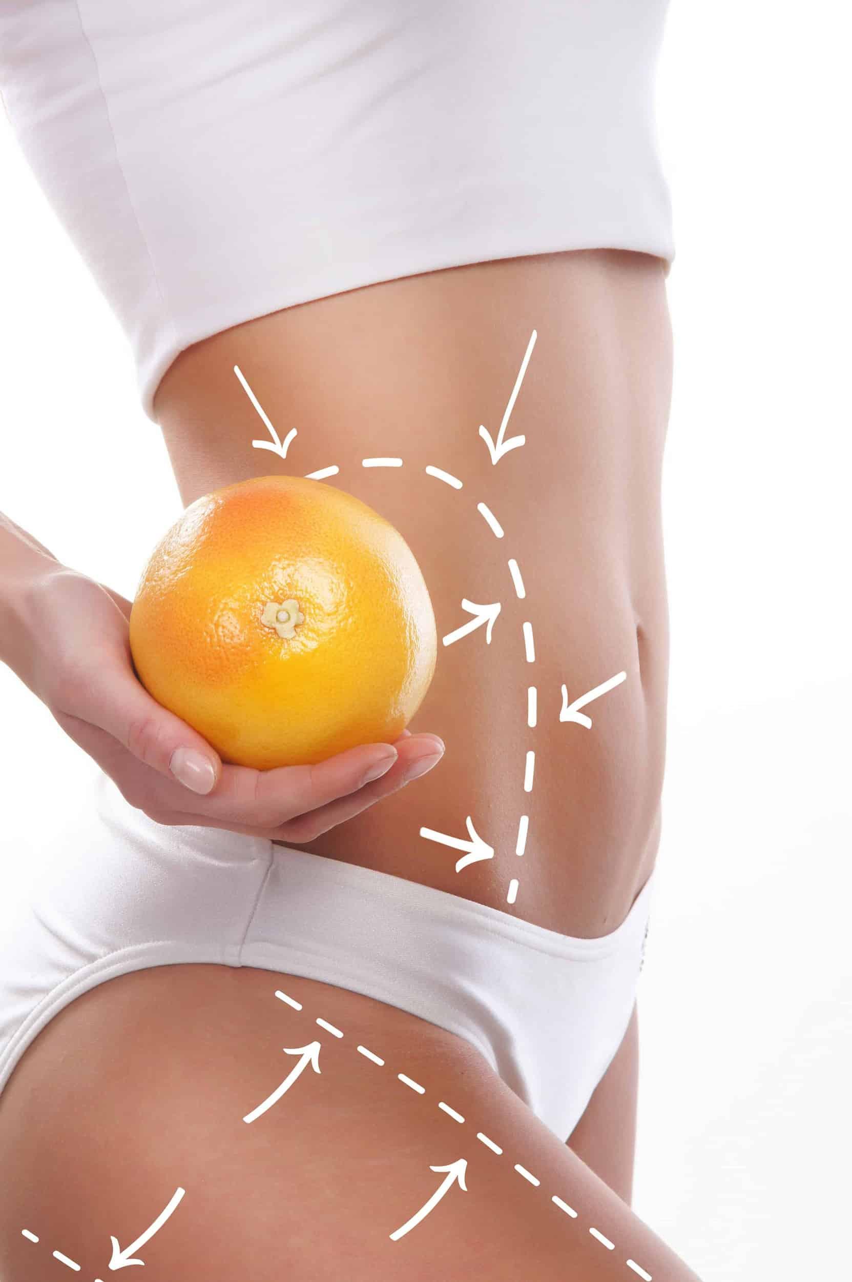 Expert Body Care Iasi Salon Remodelare Corporala fata fit portocala