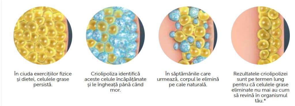 Salon remodelare corporala iasi aparat cavitatie criolipoliza proces